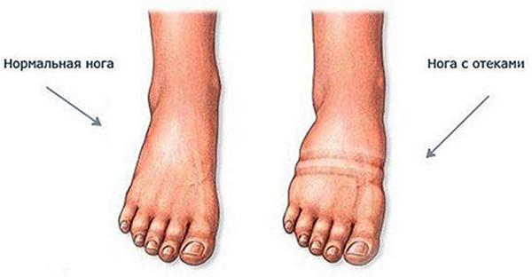 Как выглядит отек ног