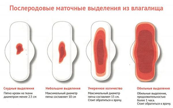 Схема объема маточных выделений