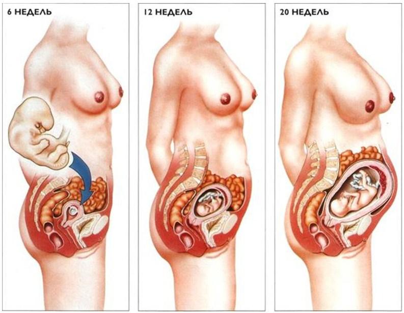 Схема смещения внутренних органов